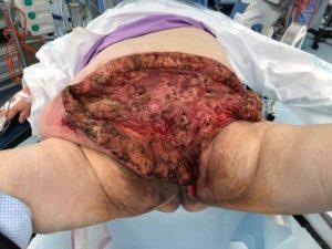 Abdomen and perineum after relook debridement