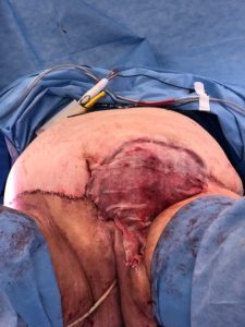Prior to split skin graft on remaining wound