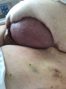 Split skin graft on left sided abdomen was observed to be taking well