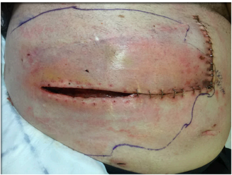 Management of a Dehisced Infected Abdominal Surgical Wound ...
