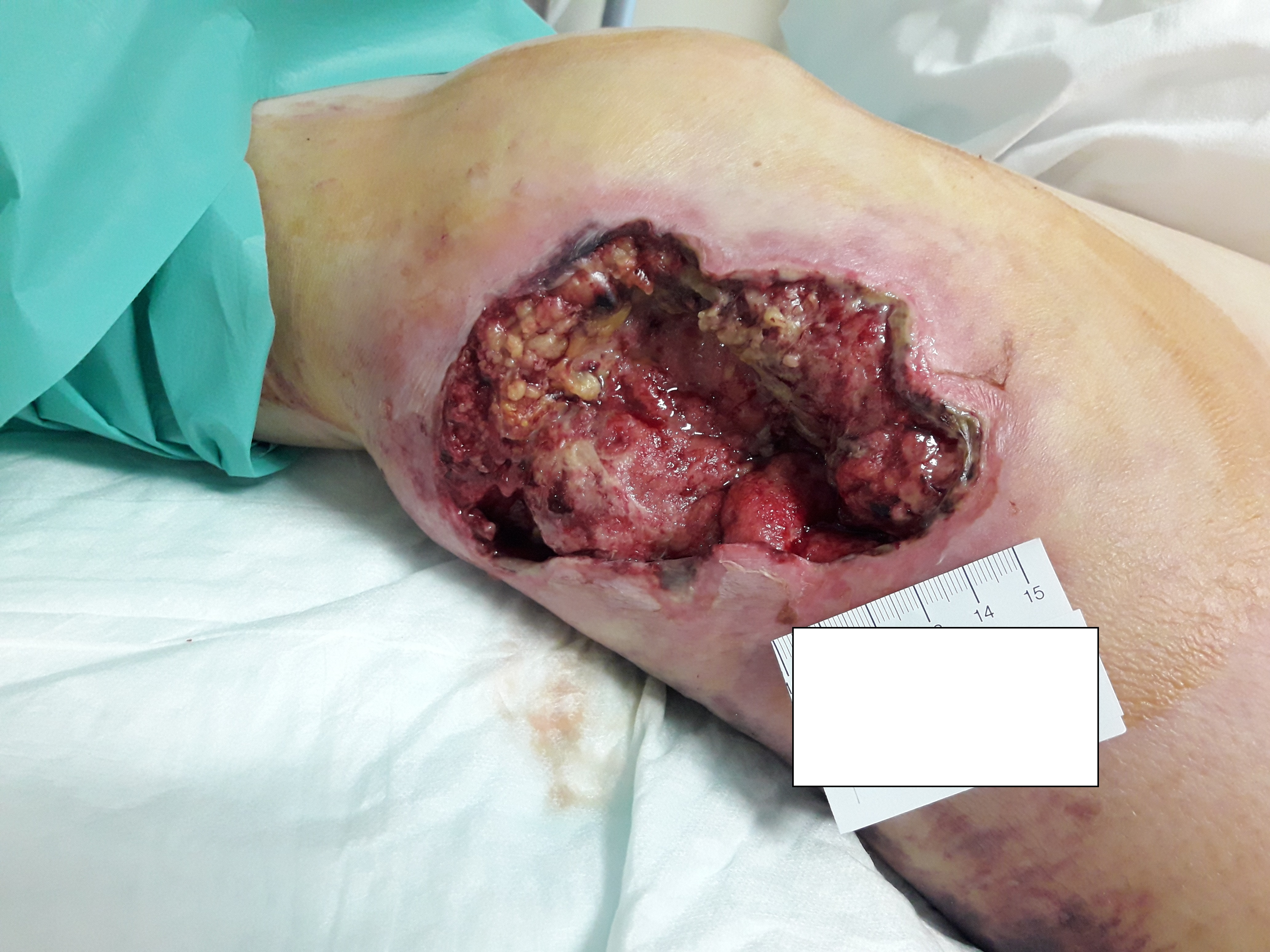 Figure 1: Wound bed at the first assessment (on February 8th 2019)